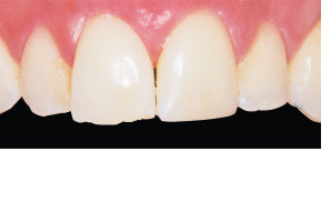 Conservative Incisal Repair Case Before