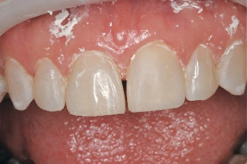 Upper Left Central Composite Veneer