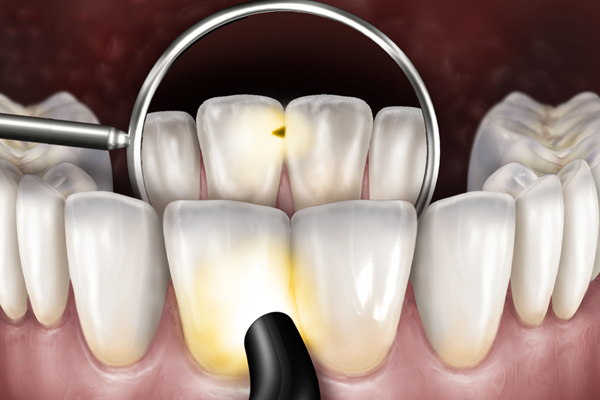 Microlux 2 Technical Detail - Anterior Caries