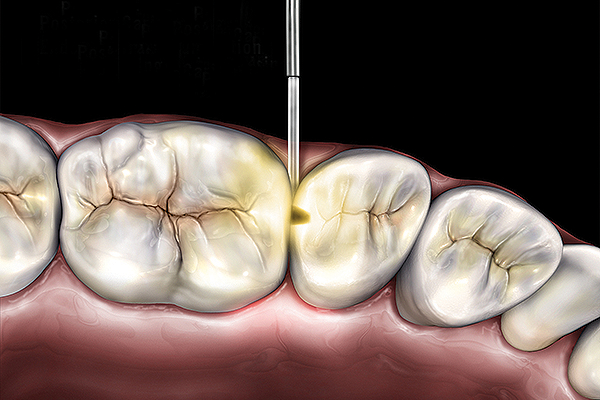 Microlux 2 Technical Detail - Posterior Caries