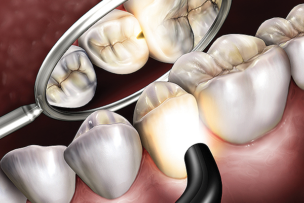Microlux 2 Technical Detail - Proximal Caries