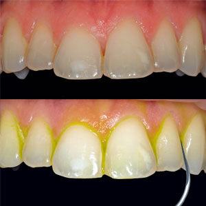 Dental plaque highlighted by NEWTRON ultrasonic scaler