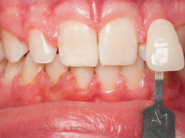 Teeth After Whitening with Opalescence Go worn over braces