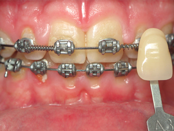 Teeth with braces before Opalescence Go whitening