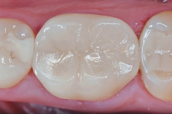Quad-Tray Xtreme Clinical Final Restored Tooth