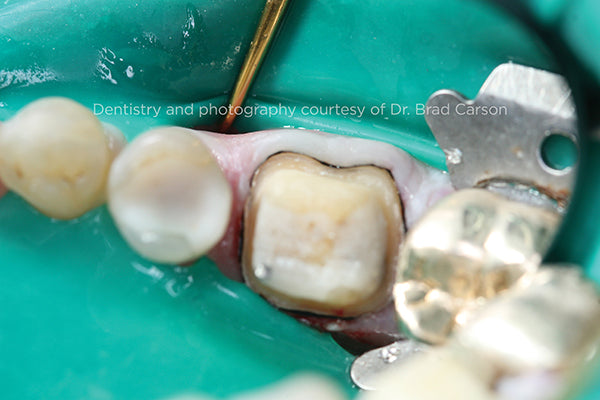 Re-Cord Placement Occlusal View
