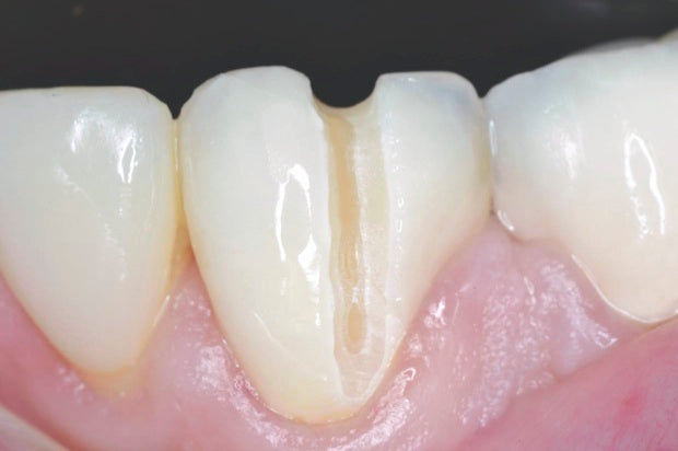 Predator Zirconia Clinical