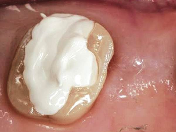 Zircules flows posterior tooth won't slump