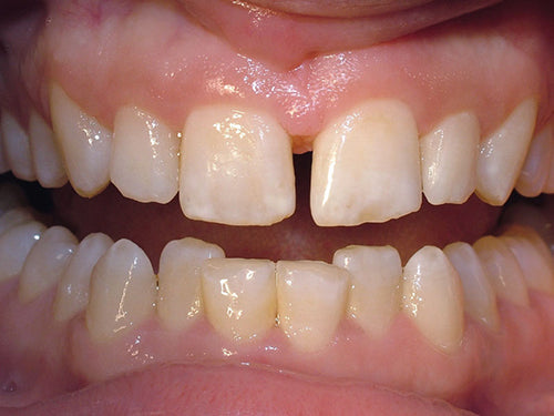 Affinity Crystal Clinical Technique 1: Two mottled centrals with a diastema to be treated with porcelain veneers. Length of #8 to be increased with electrosurgery.