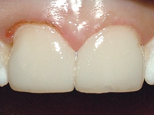 Affinity Crystal Clinical Technique 11: Final temporary veneers.