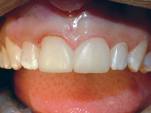 Affinity Crystal Clinical Technique 9: Temporary veneers shown with excess flash peeled off.
