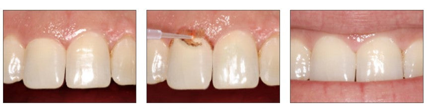 Esthetic Recontouring performed by Bluewave dental laser