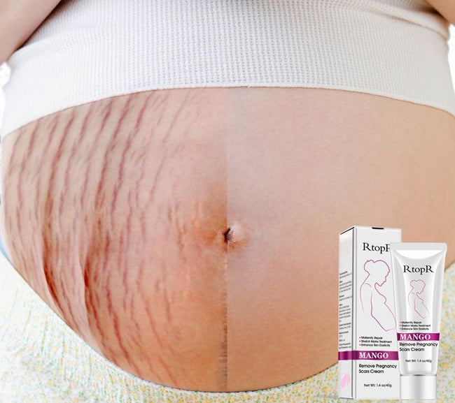 Pregnancy Scars Acne Cream Stretch Marks Treatment Maternity Repair Anti-Aging Anti Winkles Firming Body Creams