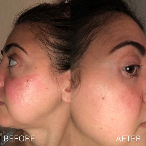 Before & After Cleanser