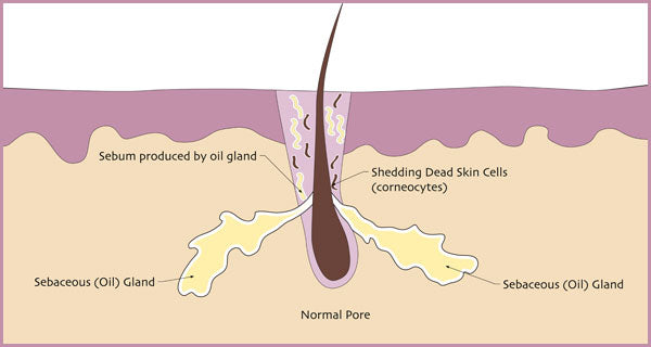 Illustration of a what a normal pore looks like. | Elements Skincare