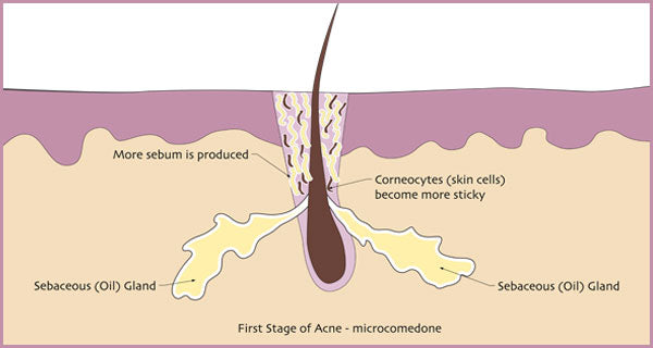 Illustration of a what the first stage of acne looks like. | Elements Skincare
