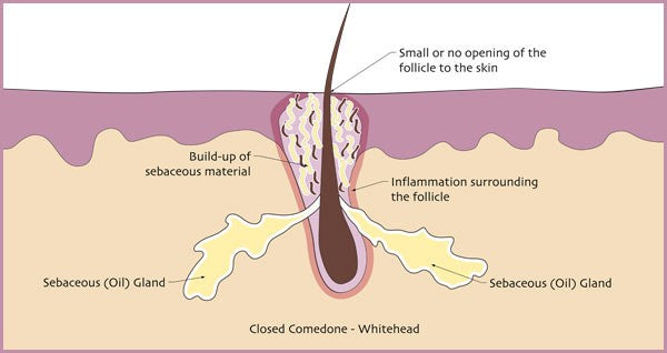 Illustration of how whiteheads are formed. | Elements Skincare