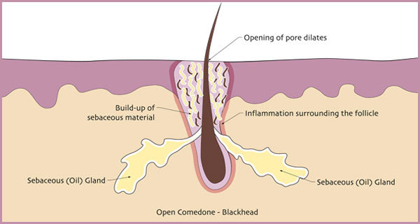 Illustration of how blackheads are formed. | Elements Skincare