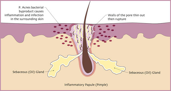 Illustration of how pimples develop. | Elements Skincare