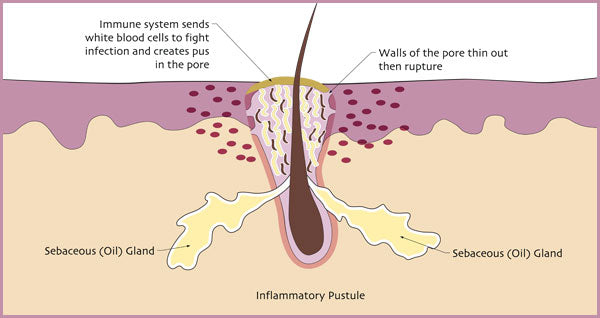 Illustration of how pustules develop. | Elements Skincare