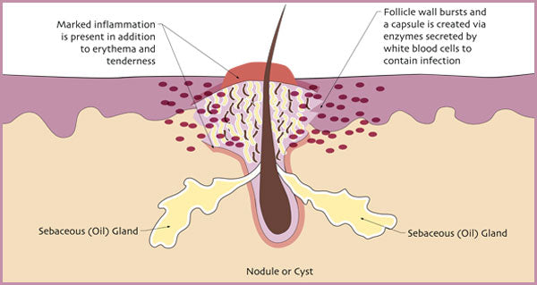 Illustration of how nodules and cysts develop. | Elements Skincare
