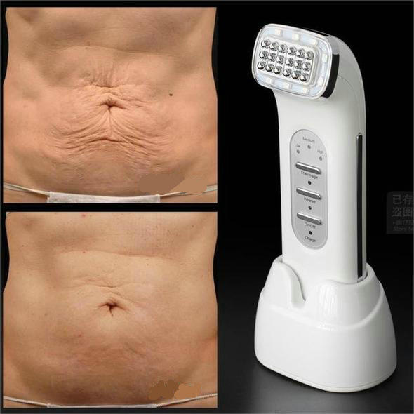 Portable Mini RF Skin Tightening Facial Contouring At Home Device
