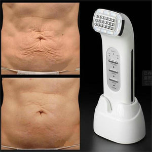 Portable Mini Infrared Thermage RF Skin Tightening Facial Contouring At Home Device