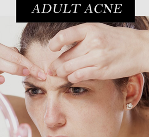 Suffering from acne as an adult? Here's what to do