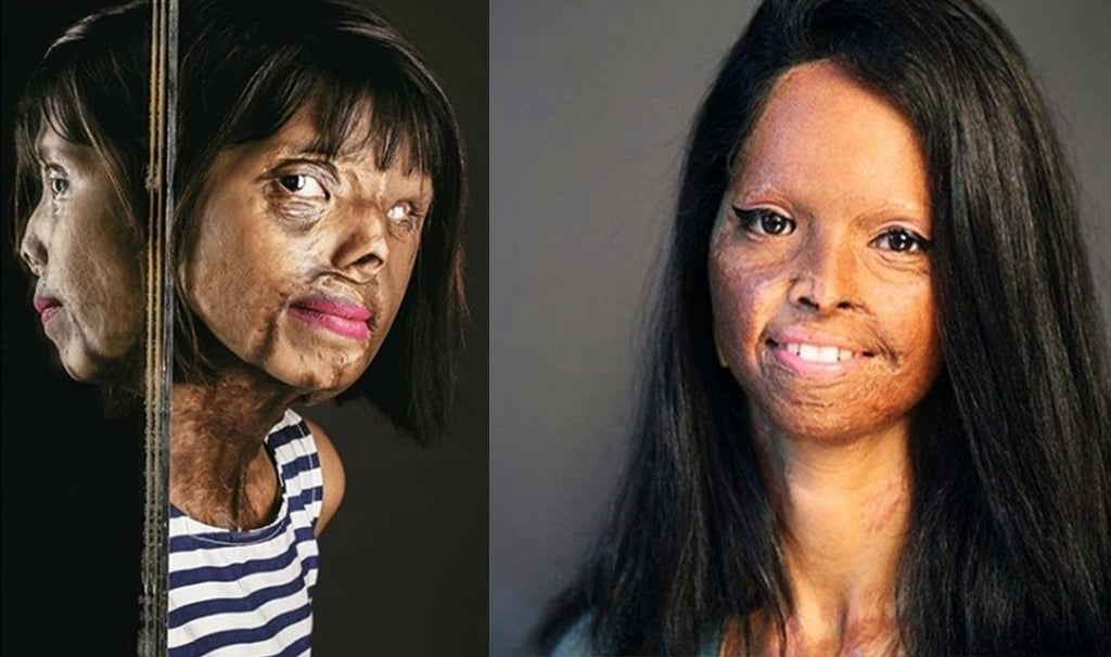 Acid Attacks: The Gender-based Terrorism