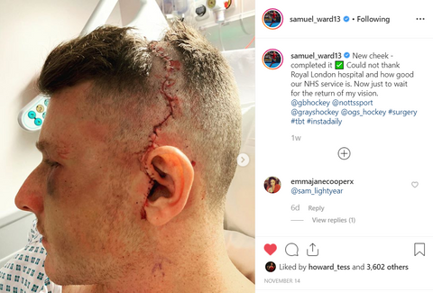 Sam Ward injury