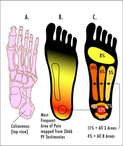 Image of Plantar Fasciitis areas with thanks to Wikipedia