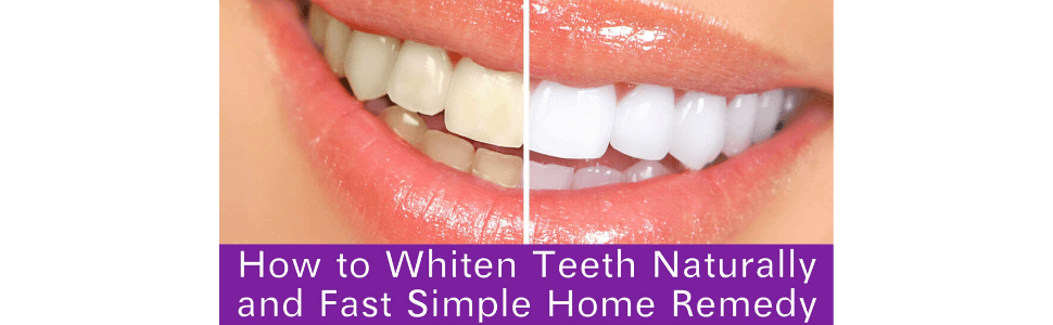 How to Whiten Teeth Naturally and Fast with a Simple Home Remedy