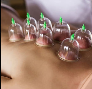 1 Cupping Sessions in Corona location