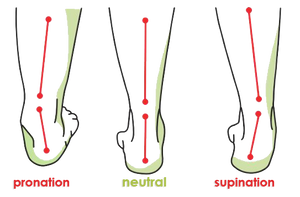 how our orthotic helps the stance