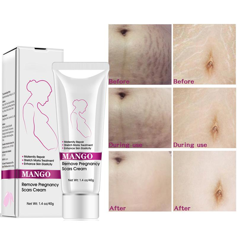 Mango Anti Stretch Mark Cream Galil Beauty