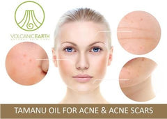 Clear Your Skin Fast from Acne, Acne Scarring and Pimples