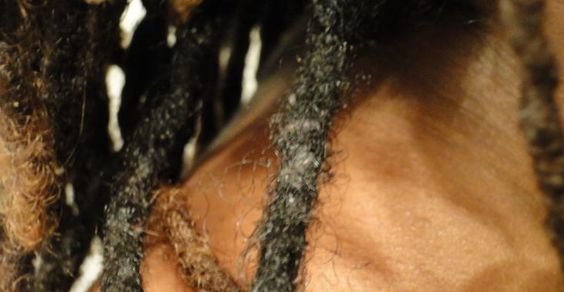 Dreadlock Lint or Buildup?