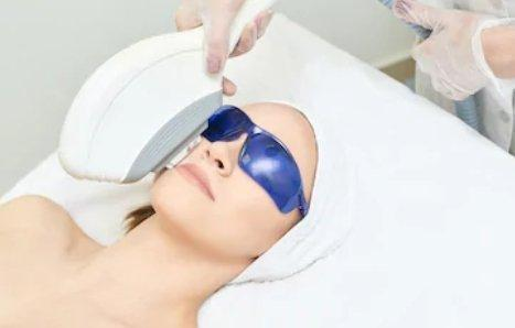 what is ipl treatment | Medical Beauty Laser