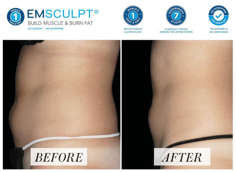 Quick and effective. Studies show that EMSCULPT can decrease fat by 19% while also increasing abdominal muscle mass by 16%. EMSCULPT is an attractive treatment option for those who have a BMI of less than 25 and may not be ideal candidates for other fat reduction treatments. These painless sessions take approximately 30 minutes and can be added or stacked onto other treatments such as CoolSculpting to give patients the tight, firm body they want.     Guts and butts. EMSCULPT is particularly effective on stubborn fat deposits in the abdomen and buttocks which are often the areas most frustrating for those seeking to improve their body shape through exercise and diet alone.  Botox  Quick, safe and effective, Botox reduces facial lines and wrinkles for up to six months with no downtime and little to no discomfort. Not only can Botox treatments prevent these lines from deepening, but they are also a simple and powerful way to reduce unwanted signs of aging and increase self-confidence.  This therapeutic muscle-relaxing agent has been approved by the FDA for several different uses and has been injected successfully and without incident in tens of millions of procedures, transforming and taking years off of the appearance of men and women alike  Dermal Fillers  Dermal fillers are one of our most popular aesthetic treatments. We inject these safe and effective formulas into the skin, as with Botox treatments, to remedy imperfections in the lower two-thirds of the face, plumping features such as the cheeks, lips, chin, and other areas.  Fillers work by attracting water to the injection site and jumpstarting collagen production at and around the treatment area. This increases the volume under the skin, stretching the skin and thus reducing and fading wrinkles.  The treatment itself can last from 15 to 45 minutes, and patients can go home immediately after that. It is a largely painless procedure as most fillers are infused with lidocaine to help minimize tenderness and discomfort.  HydraFacial  HydraFacial is a multi-step skin treatment that readily brightens the skin and rids the skin of dead skin cells and impurities. While it's doing that important work, HydraFacial also hydrates and moisturizes skin with cleansing serums made with nourishing ingredients that create an instantly gratifying glow. The treatment is soothing, refreshing, non-irritating and immediately effective.  The entire HydraFacial treatment takes as little as 30 minutes, there is no preparation needed before the procedure and you can return to your normal activities and even put on makeup right after you're done.  EMSCULPT  EMSCULPT is the only procedure that can help both women and men burn fat and build muscle. Dr. Busso was part of the BTL Aesthetics EMSCULPT development team and was the first physician in Florida to offer this exciting new technology to patients.   Particularly effective on the buttocks and abdomen, EMSCULPT® uses High-Intensity Focused Electro-Magnetic (HIFEM) field technology to induce short bursts of powerful muscle contractions that lead to increased muscle density, decreased volume, better definition, and improved tone.      EMSCULPT is the only procedure to help both women & men build muscle & burn fat — ? Build Muscle & Sculpt Your Body with EMSCULPT ? ? Only 30 Minute Treatment Equals 20.000 Sit Ups! ? No Workout ? No Sweat Required — ? Lifts, Fills & Firms The Booty with EMSCULPT ? ? No Needles ? No Downtime