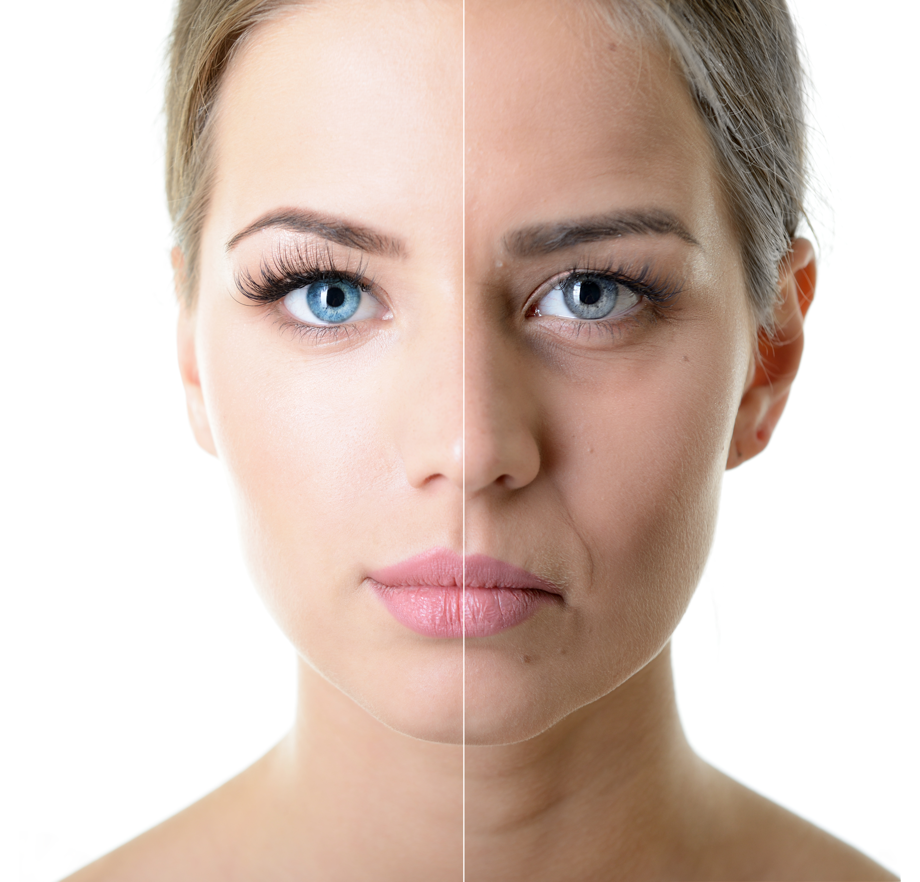 Beauty Nut Age Defying Before & After