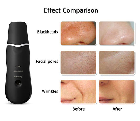 Ultrasonic Rechargeable Face Skin Scrubber Facial Cleaner gallery 8