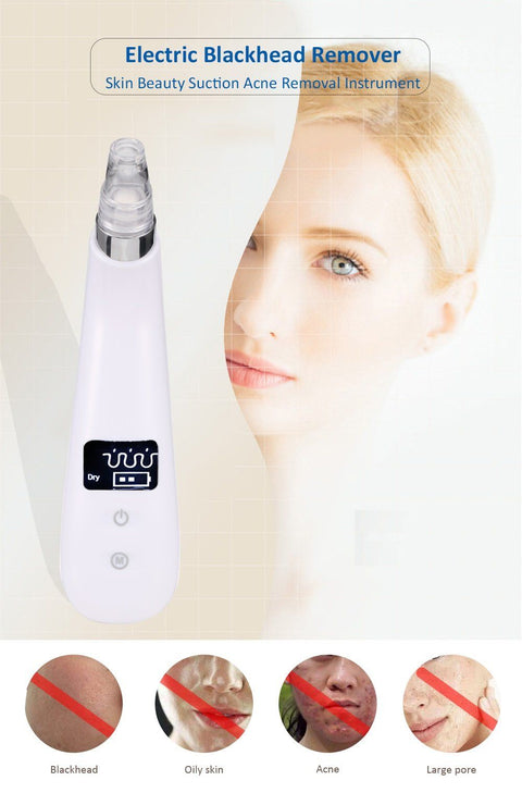 Electric Blackhead Remover Skin Beauty Suction Acne Removal Instrument gallery 5