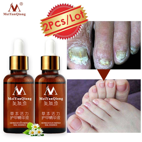2Piecses/lot Nail Fungus Treatment / Onychomycosis Paronychia / Anti Fungal Nail Infection Good Result Chinese Herbal Toe Nail