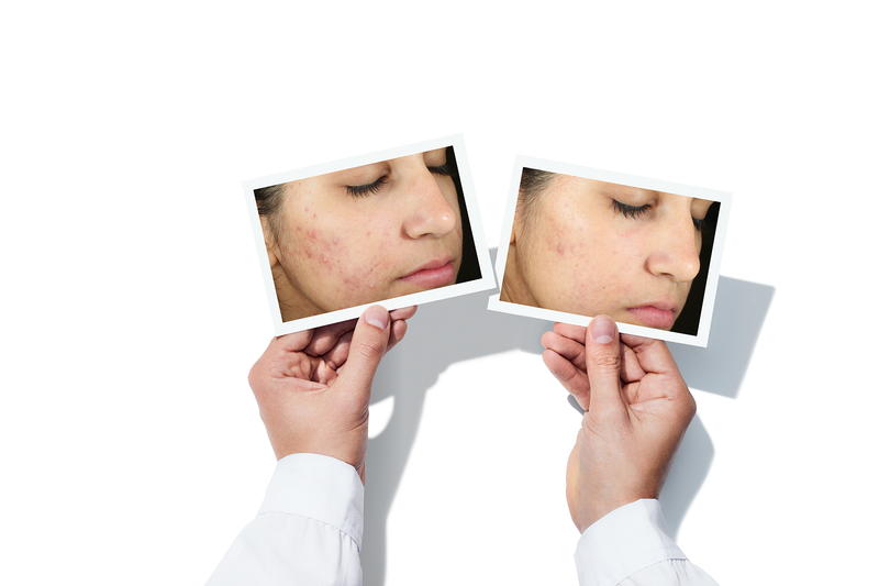 InvisiScar resurfacing Treatment - Dr Murad
