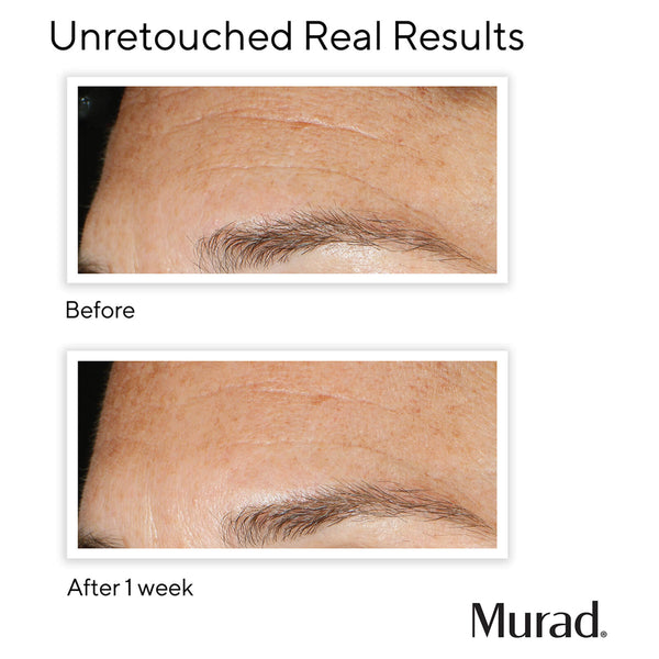 Murad - Replenishing Multi-Acid Peel - Tweefasen peeling - Hormonale huid - Beauty Junkies Store