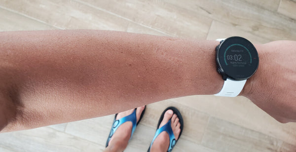 Swimmer's Itch (Cercarial Dermatitis)