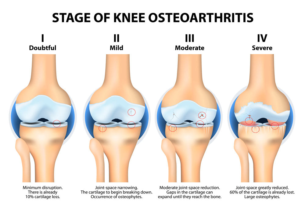 Stages of Arthritis
