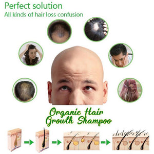 DEXE Hair Growth Shampoo