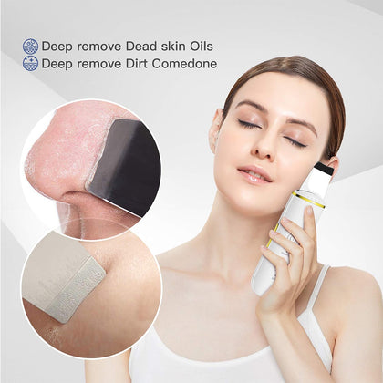 Ultrasonic Skin Scrubber Facial Cleaner Blackhead Remover - HomegoPlus