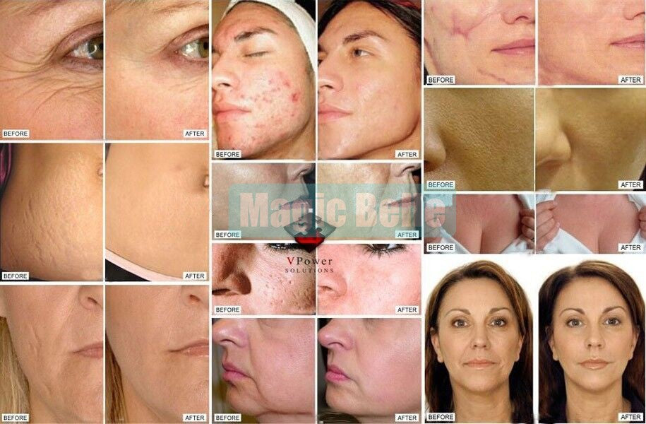 Wrinkle & Skin Rejuvenation Care